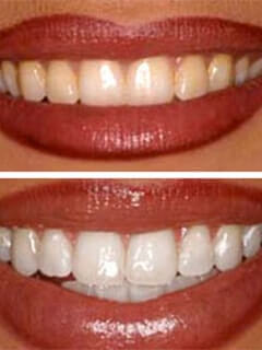 Tucson Dentistry Teeth Whitening