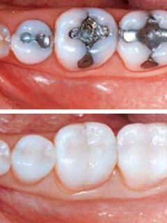 Non-Metal Fillings before and after photo